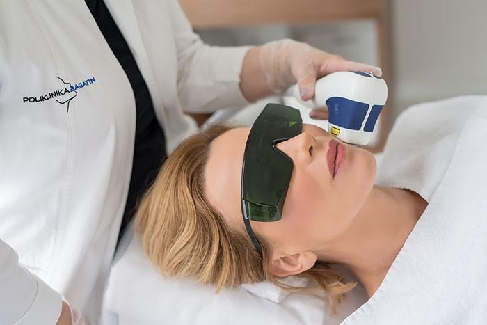 Vodič kroz najpopularnije laserske tretmane Poliklinike Bagatin