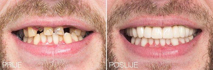 Humanitarni dentalni makeover Poliklinike Bagatin vraća osmijeh na lice