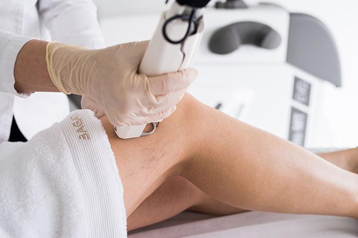 Laserski tretmani Poliklinike Bagatin: Od A do Z